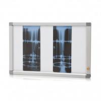 Негатоскоп Armed для общей рентгенографии, в комплектации: 1.Негатоскоп на 2 снимка - 1 шт.